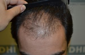 before-hair-implantation1