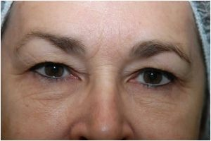 intracueticals3-300x200